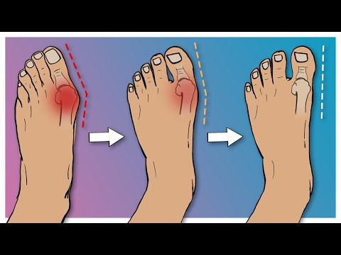 How to Fix Bunions in 5 Steps